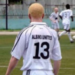 Engagement Of Albinos In Sporting Activities Is Necessary – Commissioner
