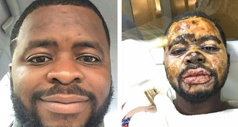 Photo of Fashola's Brother Who Got Burnt In Gas Accident Still Alive