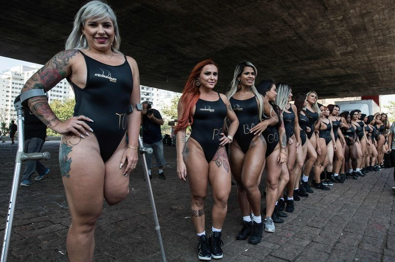 Miss Bumbum model who lost leg when jealous ex-boyfriend ran her over wants to 'break prejudices'
