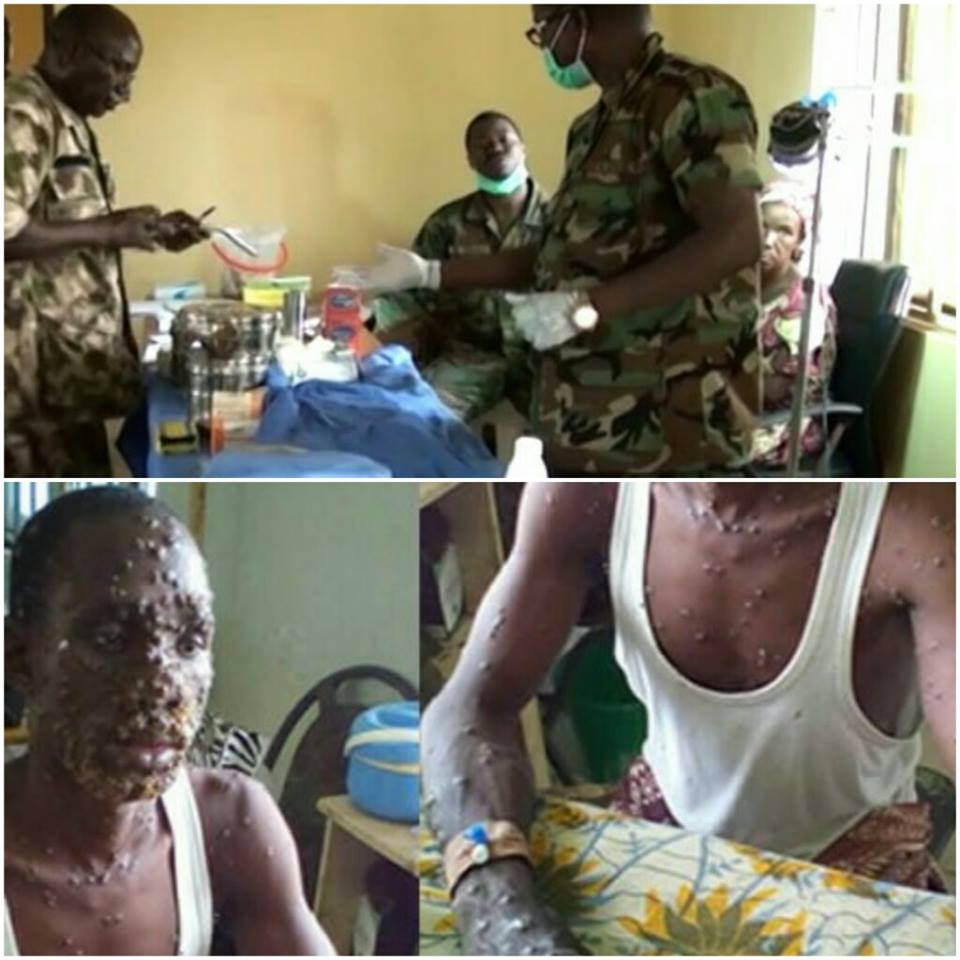 Army, Panic in Bayelsa, Rivers, Imo, Anambra over alleged killer drug injection, Latest Nigeria News, Daily Devotionals & Celebrity Gossips - Chidispalace