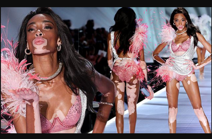 Winnie Harlow, Winnie Harlow makes history as first model with vitiligo to walk the runway at Victoria's Secret Fashion Show (See Photos)