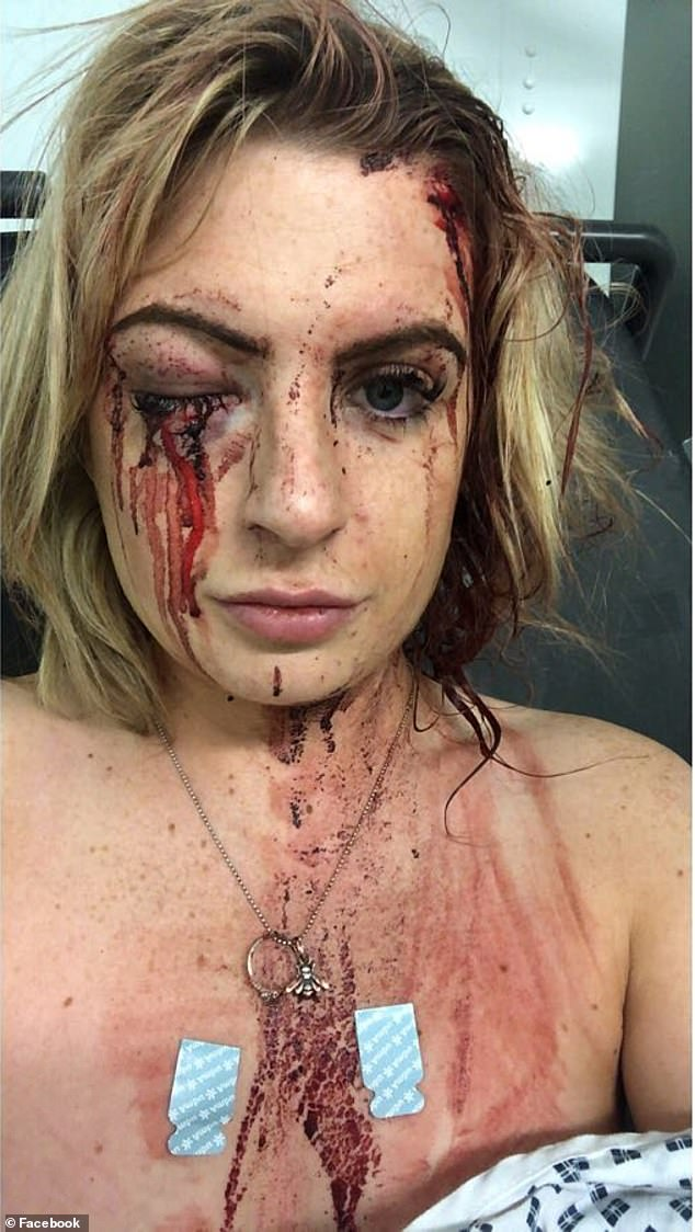 , Gymgoer shares shocking injury pictures in bid to catch the hammer-wielding carjackers who battered her and stole her Audi