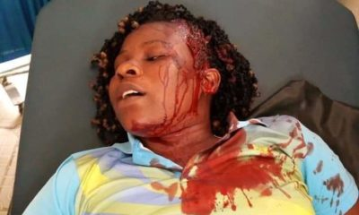 Woman escapes death after being pushed out of a moving vehicle by robbers