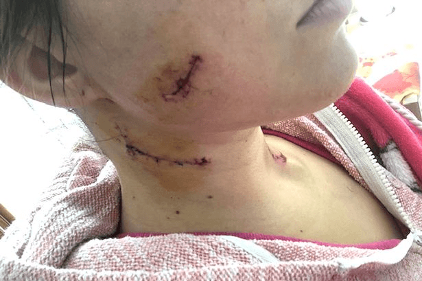 Woman stabbed 11 times in random street attack survives thanks to her Primark scarf