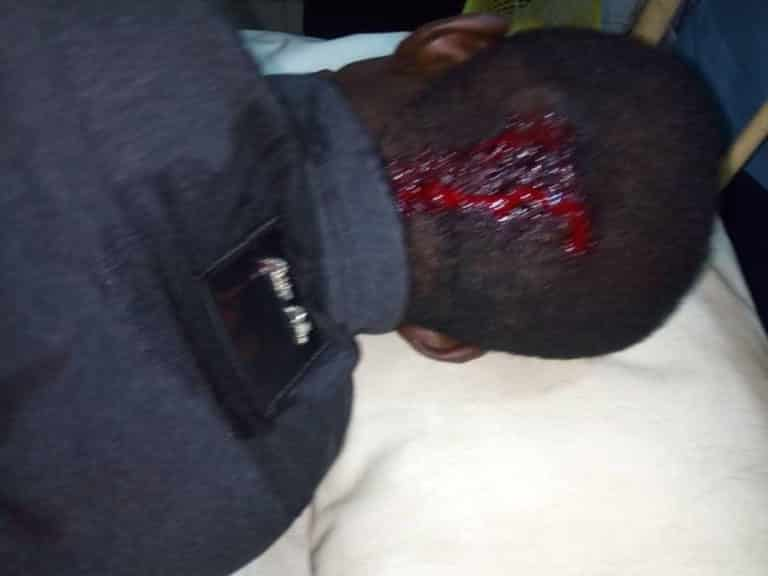 , SARS officers allegedly kill lady, leaves her boyfriend unconscious in Lagos (See Photos)