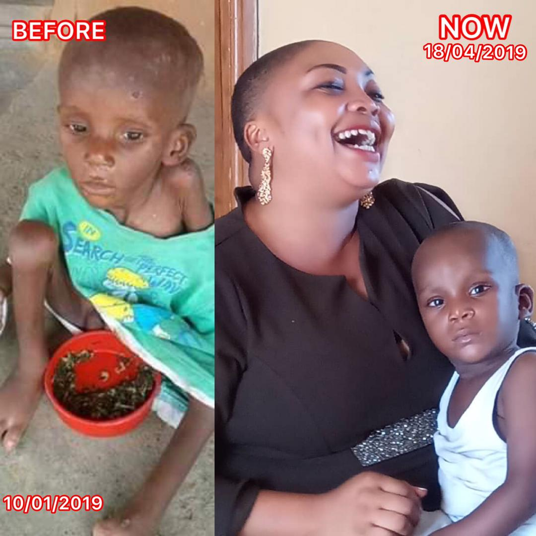 , Boy labeled as Witchcraft in Akwa Ibom Transformed by Lady who Rescued him